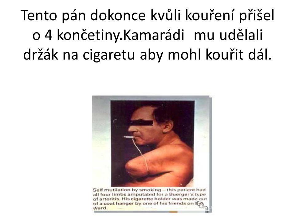Tento pán dokonce kvůli kouření přišel o 4 končetiny.Kamarádi mu udělali držák na cigaretu aby mohl kouřit dál.