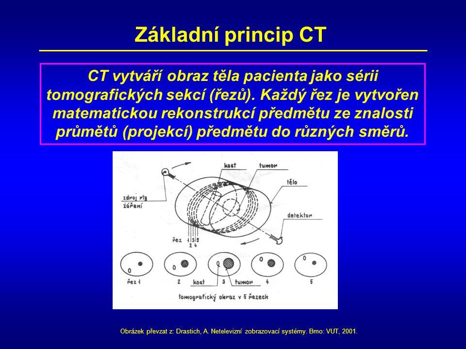 CT vytváří obraz těla pacienta jako sérii tomografických sekcí (řezů). Každý řez je vytvořen matematickou rekonstrukcí předmětu ze znalosti průmětů (p