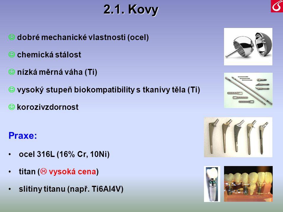 2.1. Kovy  dobré mechanické vlastnosti (ocel)  chemická stálost  nízká měrná váha (Ti)  vysoký stupeň biokompatibility s tkanivy těla (Ti)  koroz