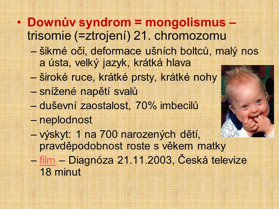 •Downův syndrom = mongolismus – trisomie (=ztrojení) 21. chromozomu –šikmé oči, deformace ušních boltců, malý nos a ústa, velký jazyk, krátká hlava –š