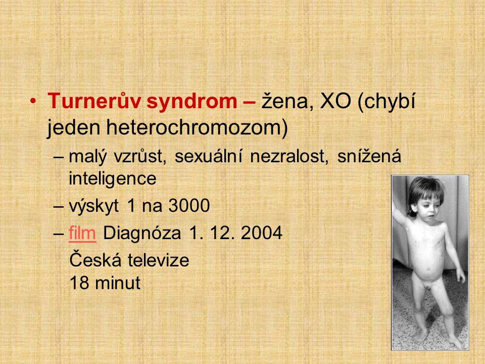 •Turnerův syndrom – žena, XO (chybí jeden heterochromozom) –malý vzrůst, sexuální nezralost, snížená inteligence –výskyt 1 na 3000 –film Diagnóza 1.