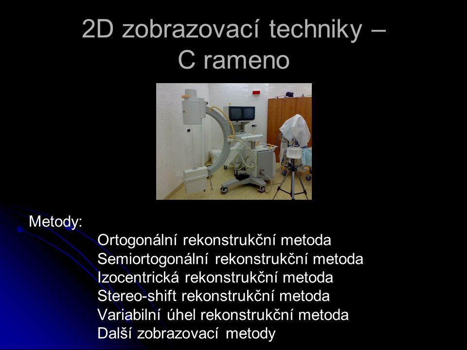 Metody: Ortogonální rekonstrukční metoda Semiortogonální rekonstrukční metoda Izocentrická rekonstrukční metoda Stereo-shift rekonstrukční metoda Vari