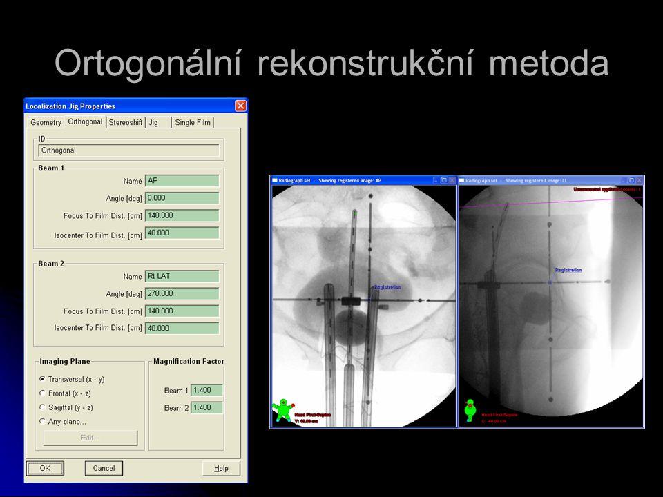 Ortogonální rekonstrukční metoda
