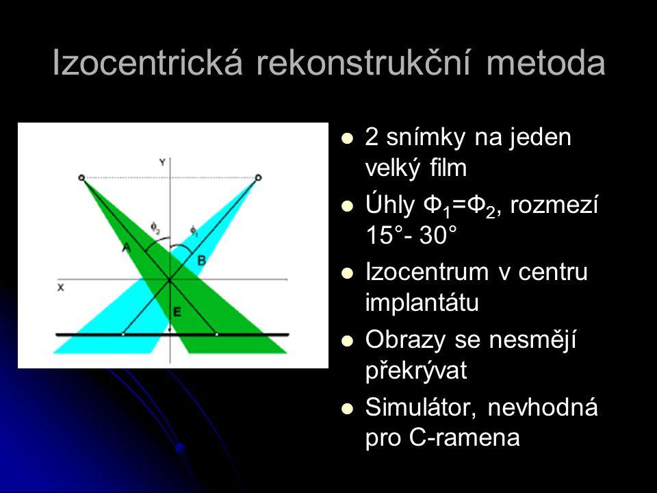 Izocentrická rekonstrukční metoda   2 snímky na jeden velký film   Úhly Ф 1 =Ф 2, rozmezí 15°- 30°   Izocentrum v centru implantátu   Obrazy s