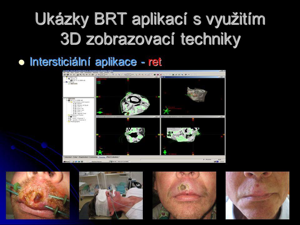 Ukázky BRT aplikací s využitím 3D zobrazovací techniky  Intersticiální aplikace - ret
