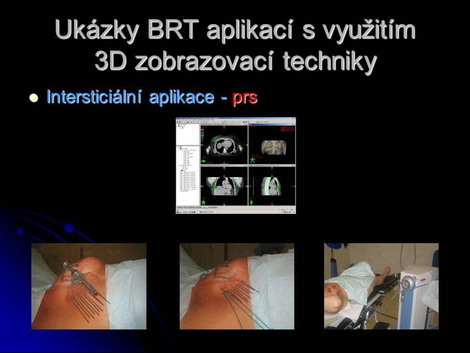 Ukázky BRT aplikací s využitím 3D zobrazovací techniky  Intersticiální aplikace - prs