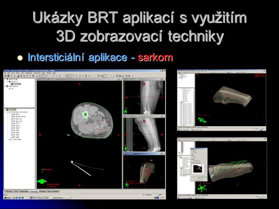 Ukázky BRT aplikací s využitím 3D zobrazovací techniky  Intersticiální aplikace - sarkom