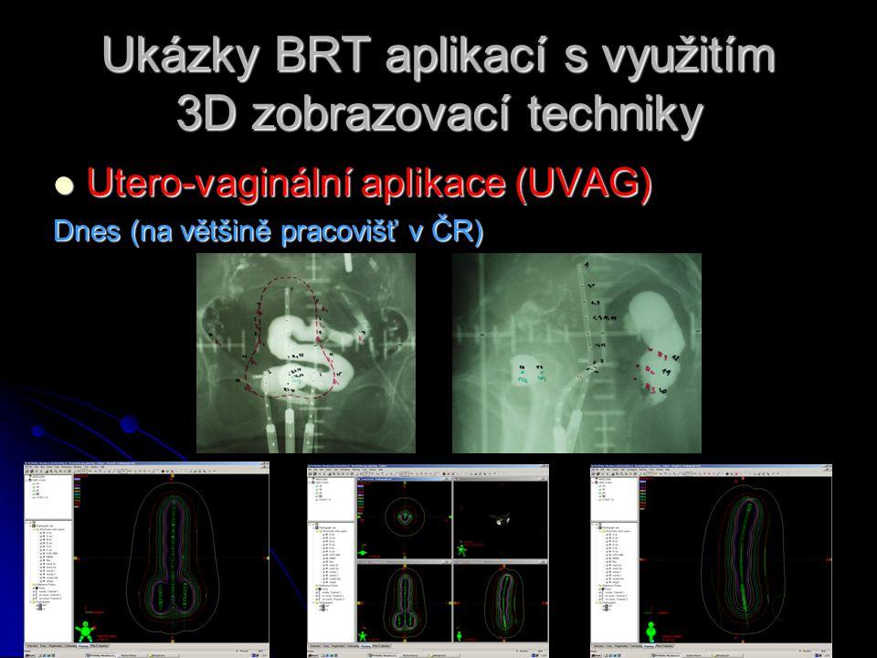 Ukázky BRT aplikací s využitím 3D zobrazovací techniky  Utero-vaginální aplikace (UVAG) Dnes (na většině pracovišť v ČR)