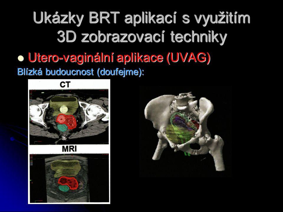 Ukázky BRT aplikací s využitím 3D zobrazovací techniky  Utero-vaginální aplikace (UVAG) Blízká budoucnost (doufejme):