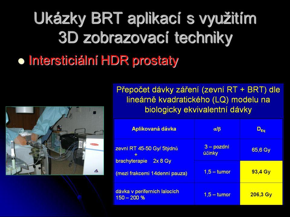 Ukázky BRT aplikací s využitím 3D zobrazovací techniky  Intersticiální HDR prostaty