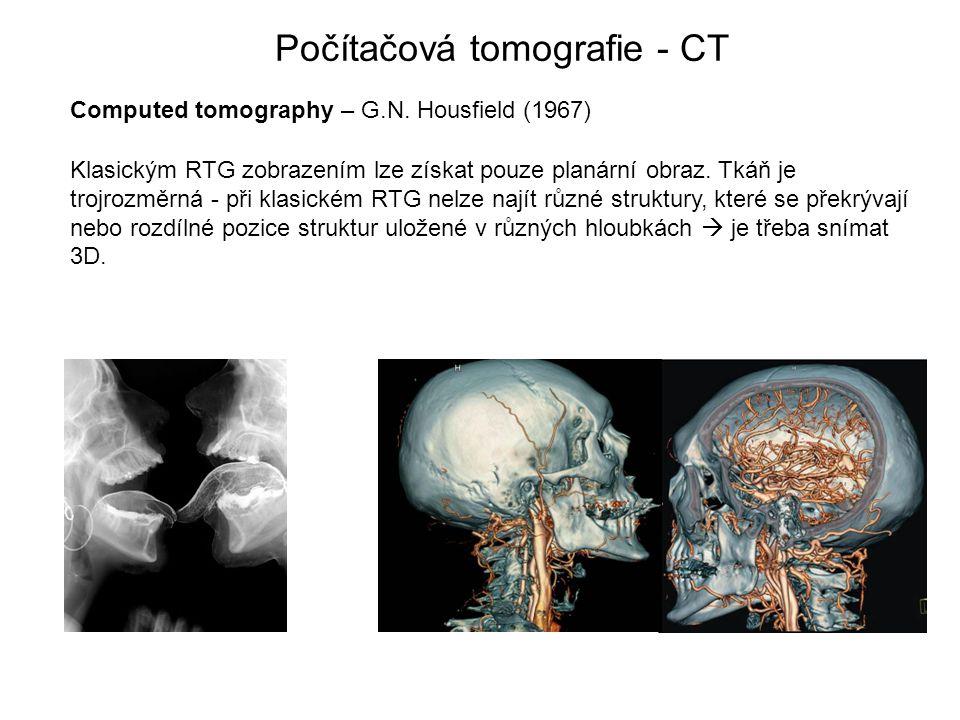 Počítačová tomografie - CT Computed tomography – G.N. Housfield (1967) Klasickým RTG zobrazením lze získat pouze planární obraz. Tkáň je trojrozměrná