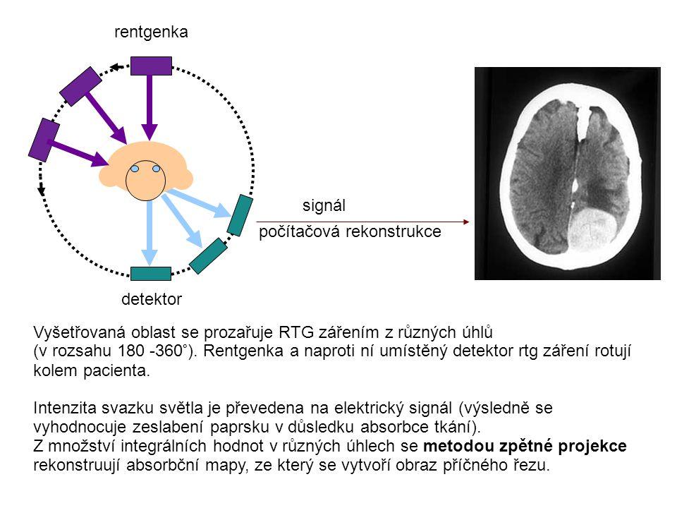 rentgenka detektor signál počítačová rekonstrukce Vyšetřovaná oblast se prozařuje RTG zářením z různých úhlů (v rozsahu 180 -360°). Rentgenka a naprot