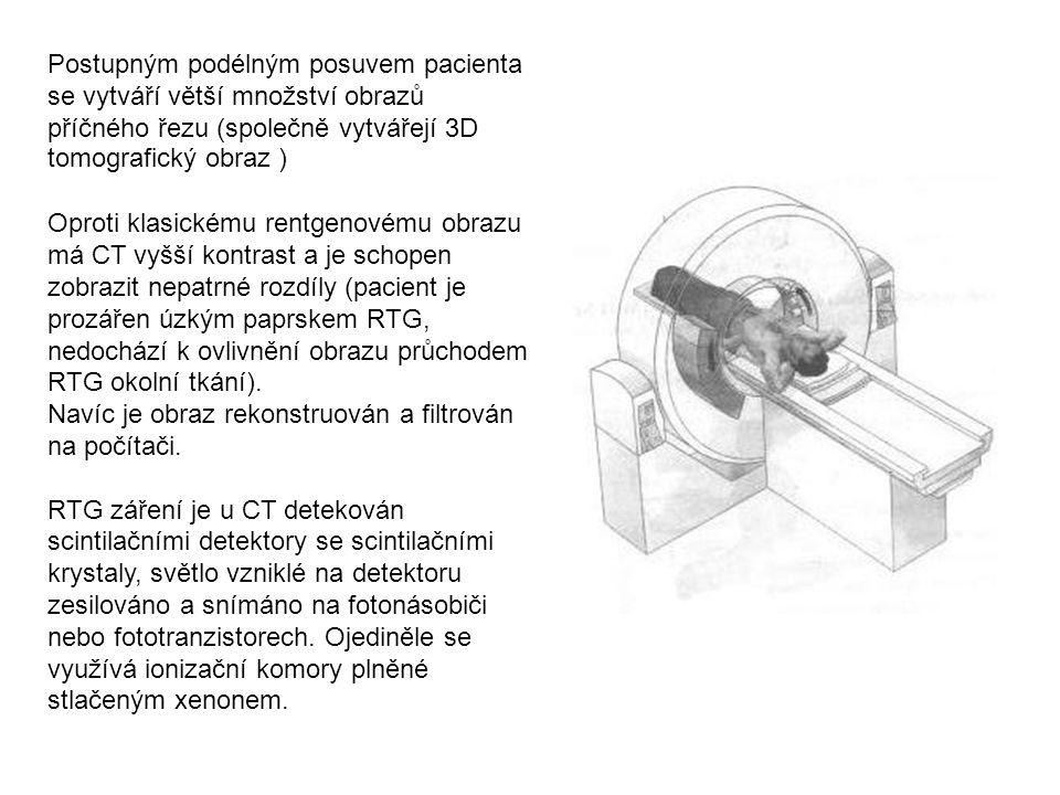 Postupným podélným posuvem pacienta se vytváří větší množství obrazů příčného řezu (společně vytvářejí 3D tomografický obraz ) Oproti klasickému rentgenovému obrazu má CT vyšší kontrast a je schopen zobrazit nepatrné rozdíly (pacient je prozářen úzkým paprskem RTG, nedochází k ovlivnění obrazu průchodem RTG okolní tkání).