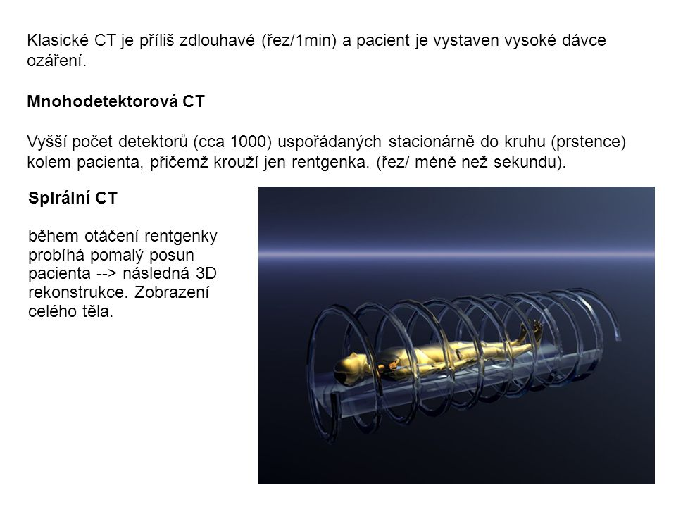 Klasické CT je příliš zdlouhavé (řez/1min) a pacient je vystaven vysoké dávce ozáření. Mnohodetektorová CT Vyšší počet detektorů (cca 1000) uspořádaný
