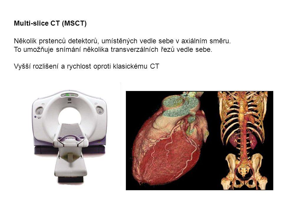Multi-slice CT (MSCT) Několik prstenců detektorů, umístěných vedle sebe v axiálním směru. To umožňuje snímání několika transverzálních řezů vedle seb