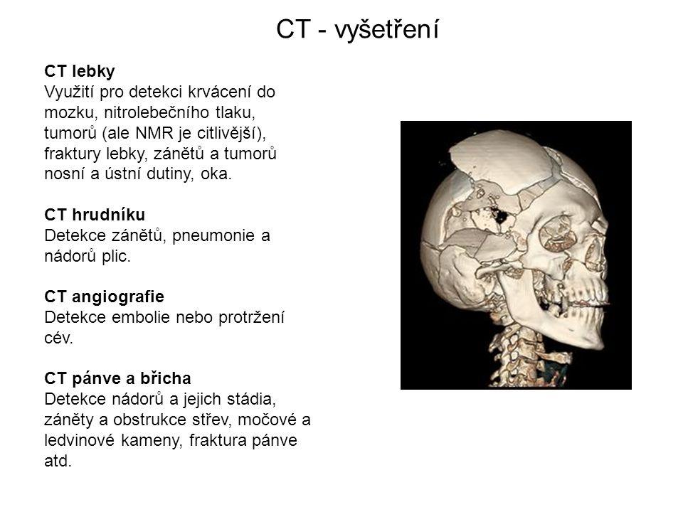CT - vyšetření CT lebky Využití pro detekci krvácení do mozku, nitrolebečního tlaku, tumorů (ale NMR je citlivější), fraktury lebky, zánětů a tumorů nosní a ústní dutiny, oka.