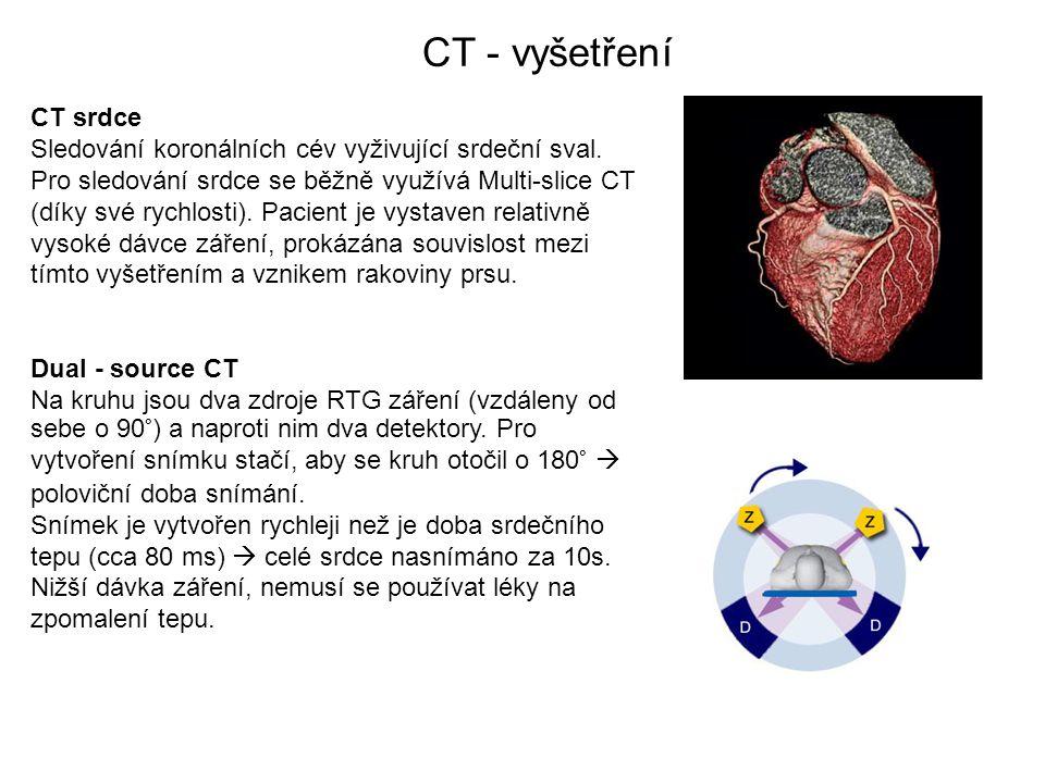 CT - vyšetření CT srdce Sledování koronálních cév vyživující srdeční sval. Pro sledování srdce se běžně využívá Multi-slice CT (díky své rychlosti). P