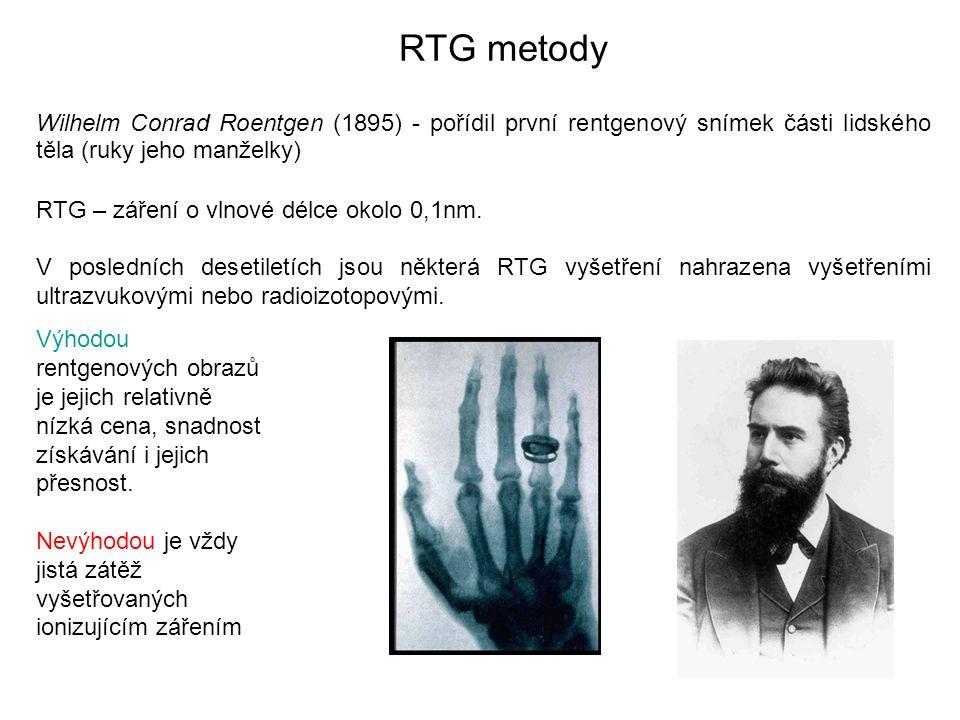 RTG metody Wilhelm Conrad Roentgen (1895) - pořídil první rentgenový snímek části lidského těla (ruky jeho manželky) RTG – záření o vlnové délce okol