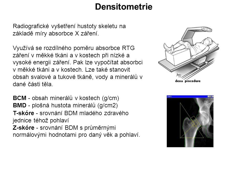 Radiografické vyšetření hustoty skeletu na základě míry absorbce X záření.