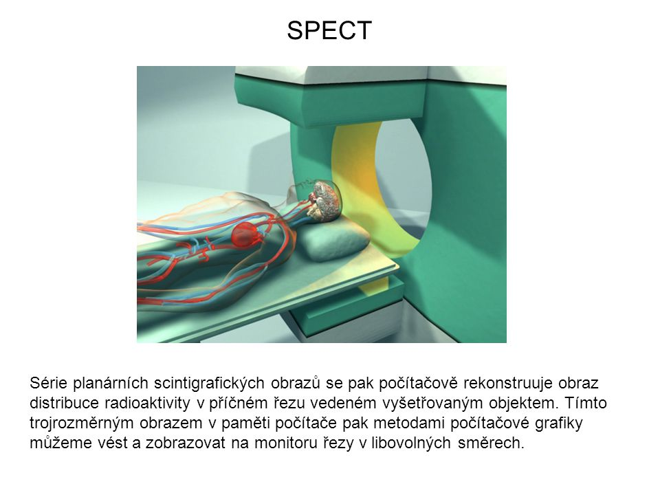 Série planárních scintigrafických obrazů se pak počítačově rekonstruuje obraz distribuce radioaktivity v příčném řezu vedeném vyšetřovaným objektem.
