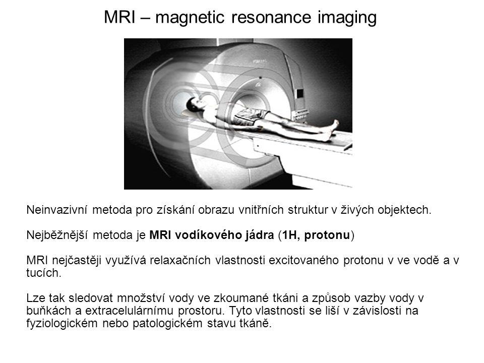 MRI – magnetic resonance imaging Neinvazivní metoda pro získání obrazu vnitřních struktur v živých objektech. Nejběžnější metoda je MRI vodíkového jád