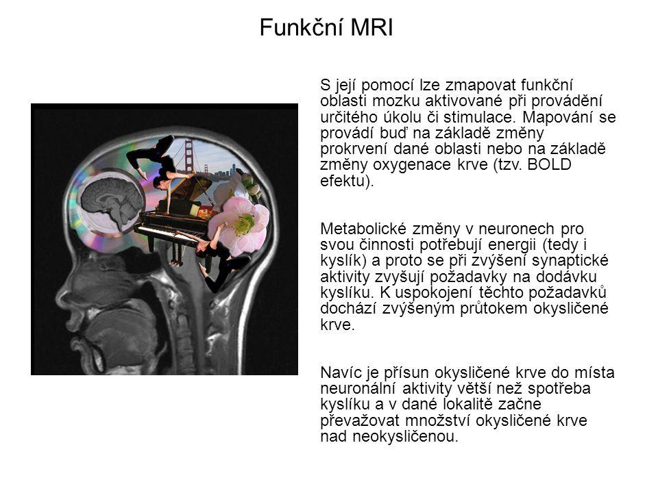 Funkční MRI S její pomocí lze zmapovat funkční oblasti mozku aktivované při provádění určitého úkolu či stimulace. Mapování se provádí buď na základě