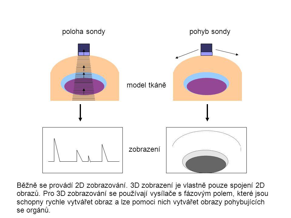 poloha sondypohyb sondy model tkáně zobrazení Běžně se provádí 2D zobrazování. 3D zobrazení je vlastně pouze spojení 2D obrazů. Pro 3D zobrazování se