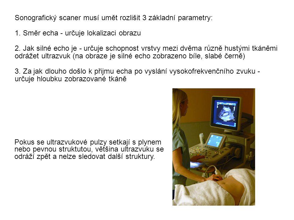Sonografický scaner musí umět rozlišit 3 základní parametry: 1. Směr echa - určuje lokalizaci obrazu 2. Jak silné echo je - určuje schopnost vrstvy me