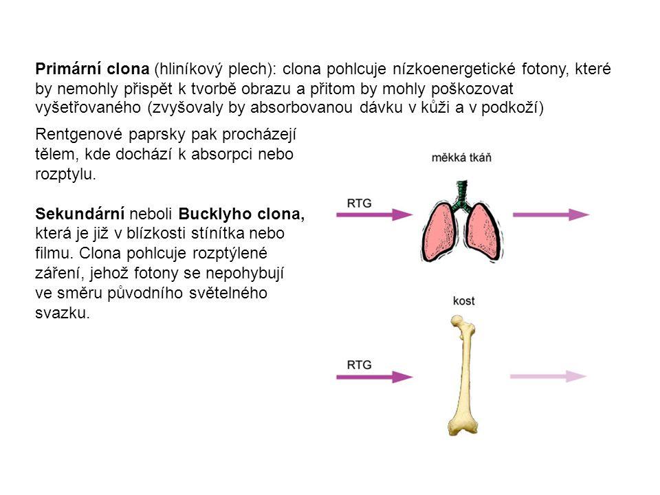 Primární clona (hliníkový plech): clona pohlcuje nízkoenergetické fotony, které by nemohly přispět k tvorbě obrazu a přitom by mohly poškozovat vyšetřovaného (zvyšovaly by absorbovanou dávku v kůži a v podkoží) Rentgenové paprsky pak procházejí tělem, kde dochází k absorpci nebo rozptylu.