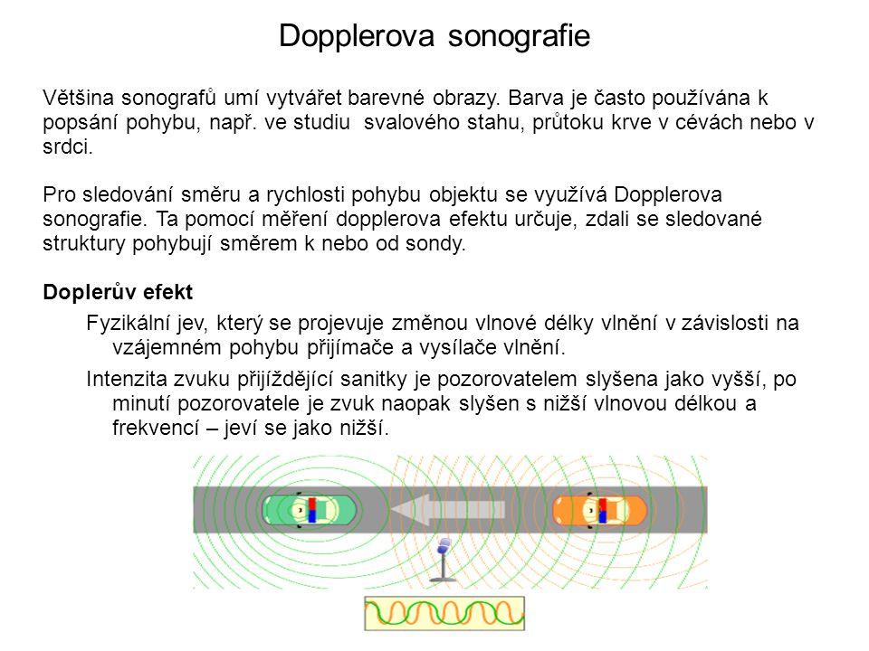 Dopplerova sonografie Většina sonografů umí vytvářet barevné obrazy. Barva je často používána k popsání pohybu, např. ve studiu svalového stahu, průto