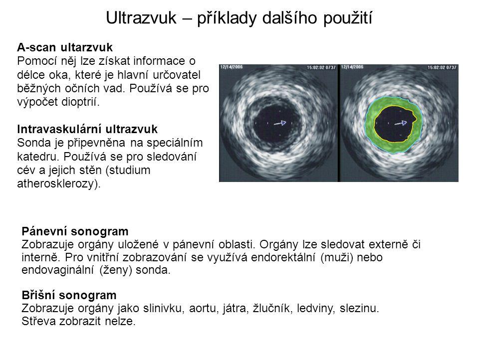 Ultrazvuk – příklady dalšího použití A-scan ultarzvuk Pomocí něj lze získat informace o délce oka, které je hlavní určovatel běžných očních vad. Použí