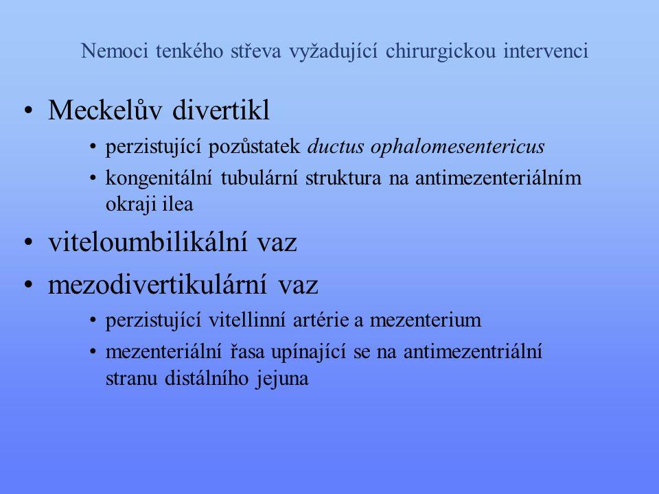Nemoci tenkého střeva vyžadující chirurgickou intervenci •Meckelův divertikl •perzistující pozůstatek ductus ophalomesentericus •kongenitální tubulárn