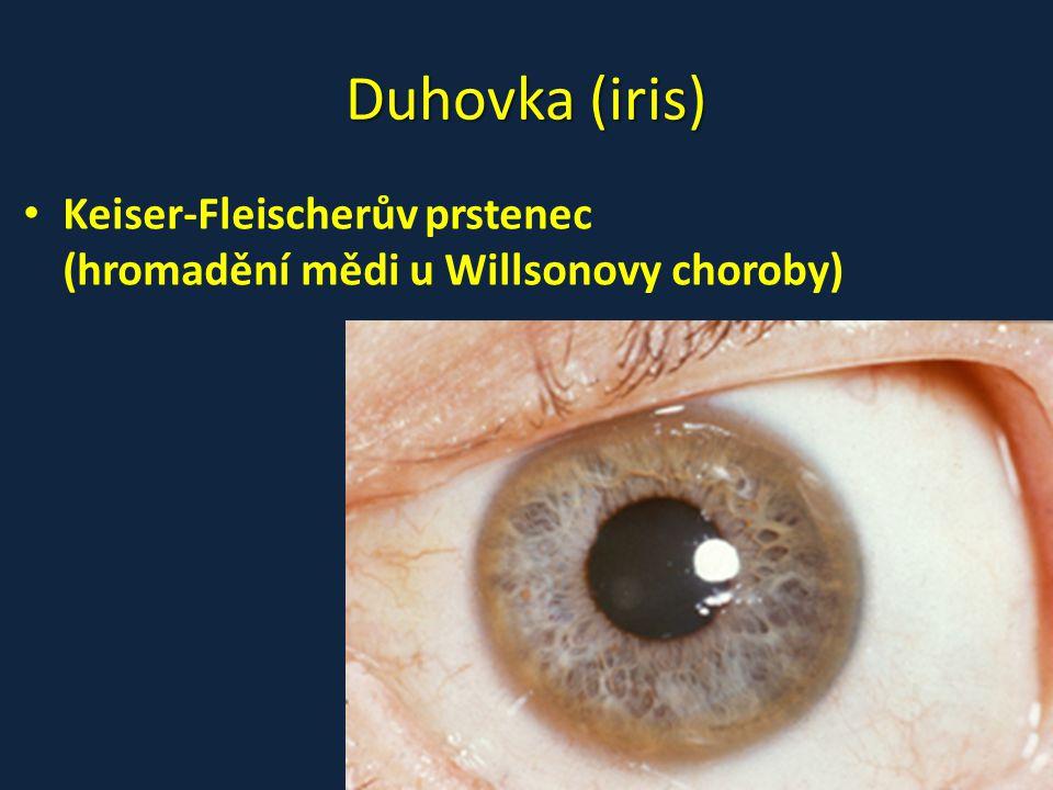 Duhovka (iris) • Keiser-Fleischerův prstenec (hromadění mědi u Willsonovy choroby)