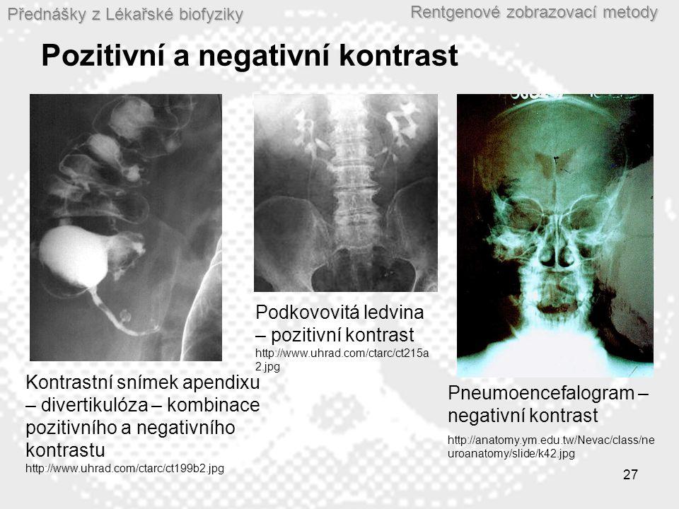 Přednášky z Lékařské biofyziky Rentgenové zobrazovací metody 27 Pozitivní a negativní kontrast Kontrastní snímek apendixu – divertikulóza – kombinace pozitivního a negativního kontrastu http://www.uhrad.com/ctarc/ct199b2.jpg Podkovovitá ledvina – pozitivní kontrast http://www.uhrad.com/ctarc/ct215a 2.jpg Pneumoencefalogram – negativní kontrast http://anatomy.ym.edu.tw/Nevac/class/ne uroanatomy/slide/k42.jpg