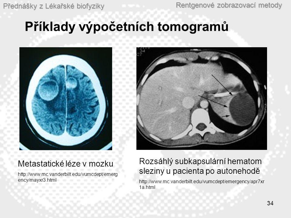 Přednášky z Lékařské biofyziky Rentgenové zobrazovací metody 34 Příklady výpočetních tomogramů Metastatické léze v mozku http://www.mc.vanderbilt.edu/vumcdept/emerg ency/mayxr3.html Rozsáhlý subkapsulární hematom sleziny u pacienta po autonehodě http://www.mc.vanderbilt.edu/vumcdept/emergency/apr7xr 1a.html