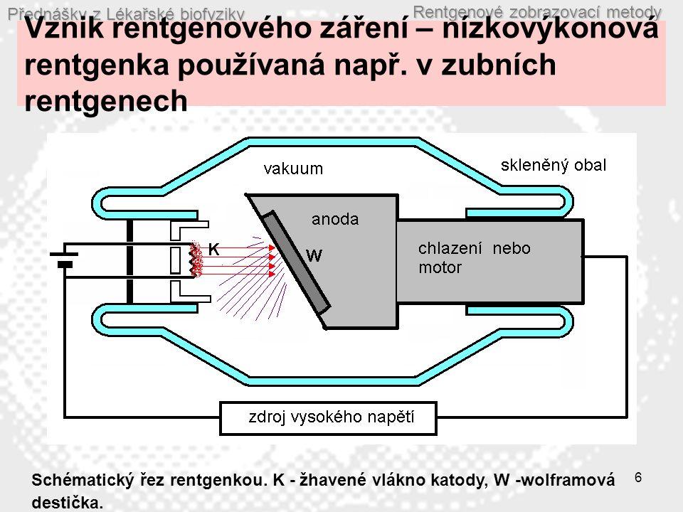 Přednášky z Lékařské biofyziky Rentgenové zobrazovací metody 17 Zesilovač obrazu R – rentgenka, P - pacient, O 1 – primární obraz na fluorescenčním stínítku, G – skleněný nosič, F – fluorescenční stínítko, FK - fotokatoda, FE – fokusující elektrody (elektronová optika), A - anoda, O 2 – sekundární obraz na stínítku anody, V – videokamera.