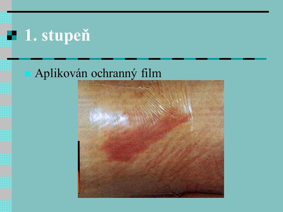 Prevence - suchá, čistá kůže - pravidelné mytí, řádná hygiena – omezit mýdlo, následné osušení - ošetření kůže těl.
