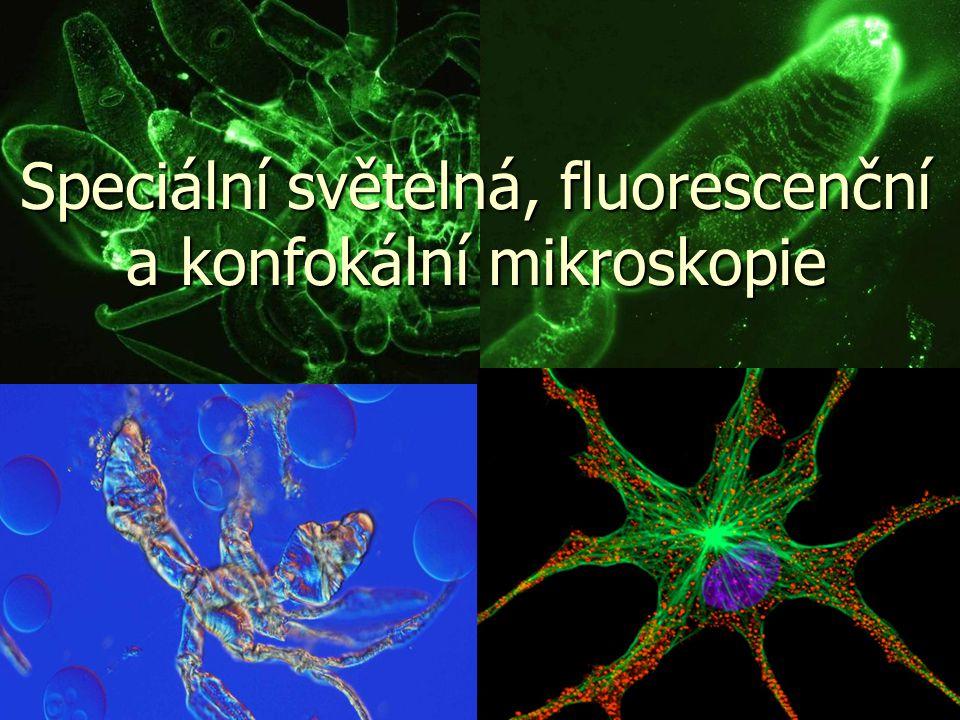 Dozvíte se něco o: Speciální světelné mikroskopii  Zástin a fázový kontrast  Nomarského diferenciální interferenční kontrast (DIC)  Hoffmanův modulační kontrast  Fluorescenční mikroskopie  Konfokální mikroskopie Vyzkoušíte si přípravu preparátů