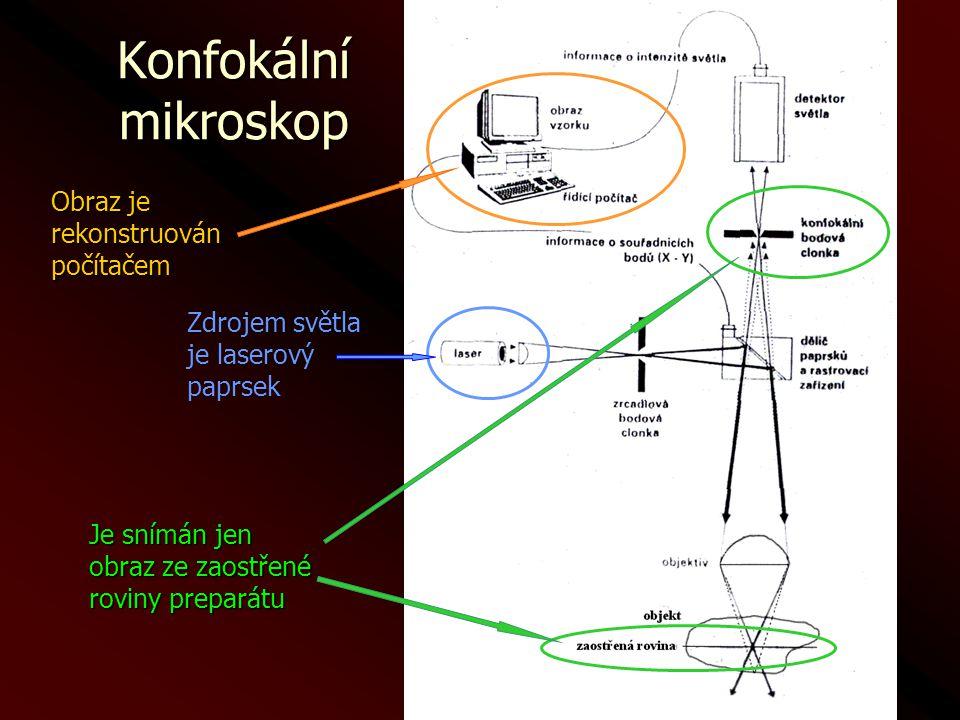 Konfokální mikroskop Je snímán jen obraz ze zaostřené roviny preparátu Obraz je rekonstruovánpočítačem Zdrojem světla je laserový paprsek