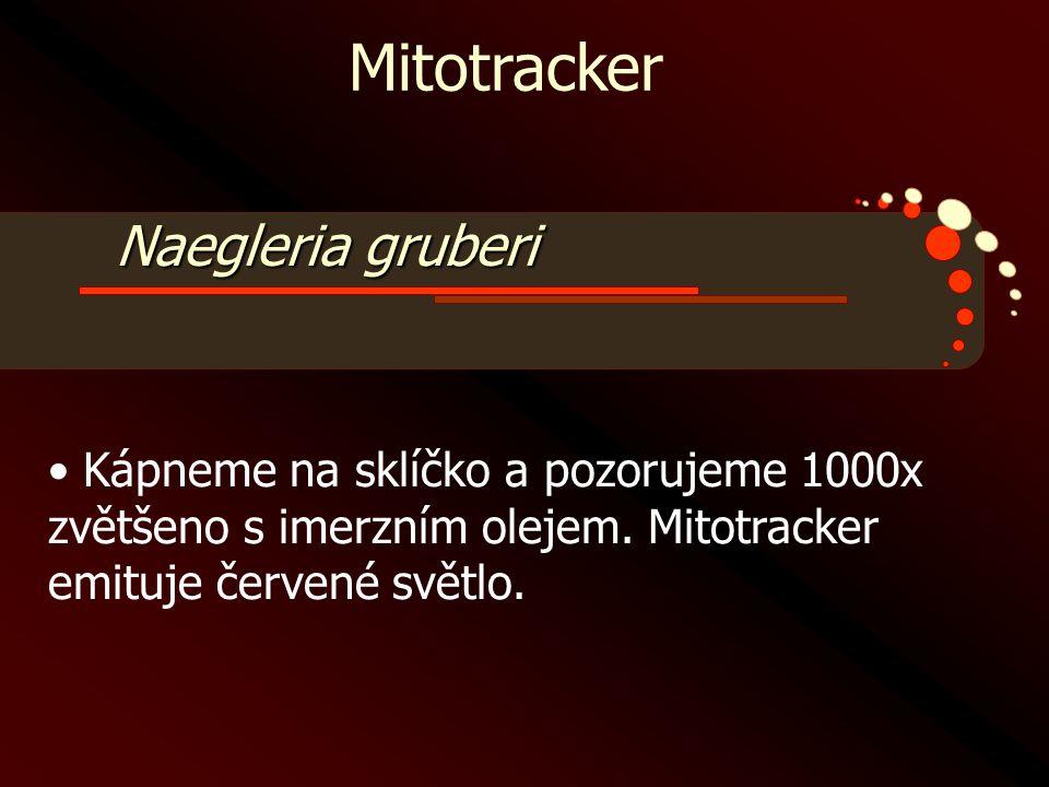Mitotracker Naegleria gruberi • Kápneme na sklíčko a pozorujeme 1000x zvětšeno s imerzním olejem. Mitotracker emituje červené světlo.