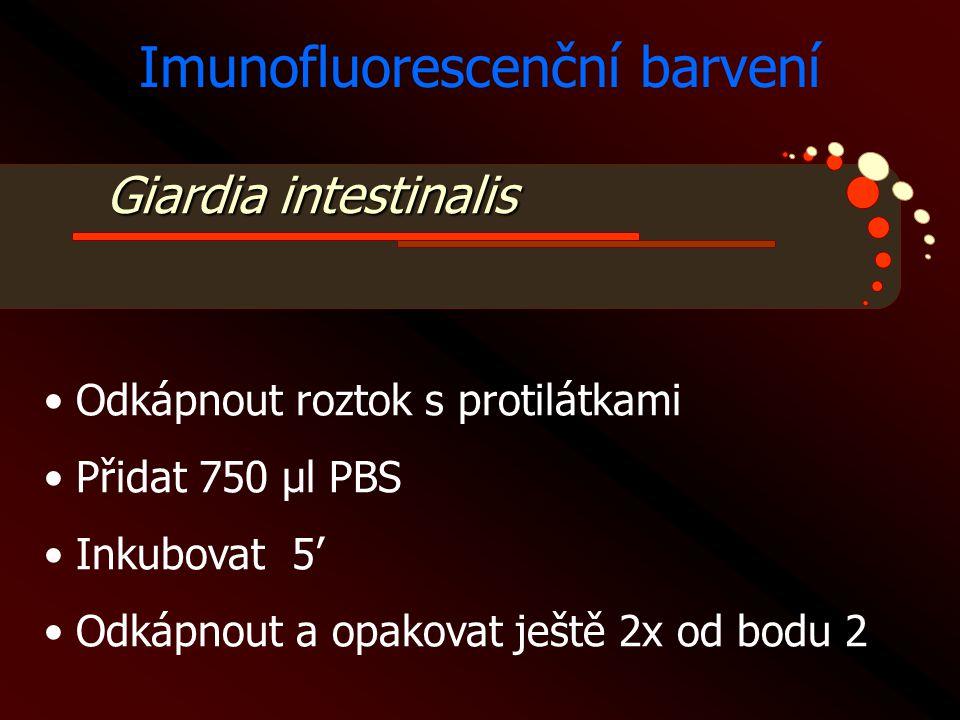 Giardia intestinalis Imunofluorescenční barvení • Odkápnout roztok s protilátkami • Přidat 750 μl PBS • Inkubovat 5' • Odkápnout a opakovat ještě 2x o