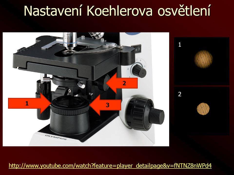 Metody zvýšení kontrastu Zástin: clona zachycuje paprsky procházející přímo do objektivu, preparát je osvětlen z boku