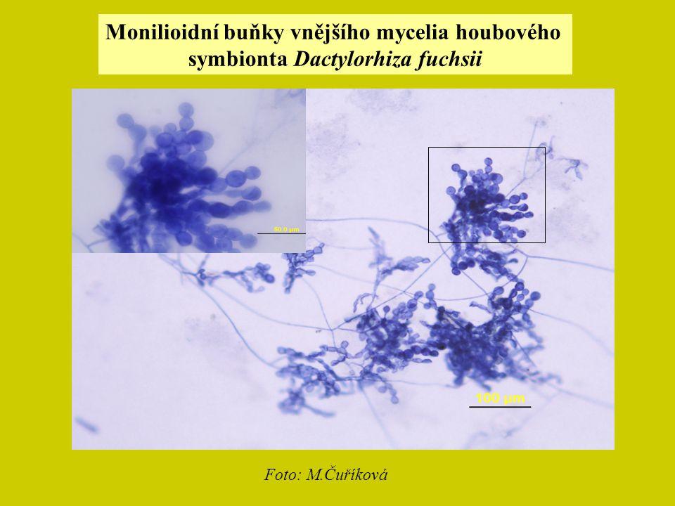 Monilioidní buňky vnějšího mycelia houbového symbionta Dactylorhiza fuchsii Foto: M.Čuříková