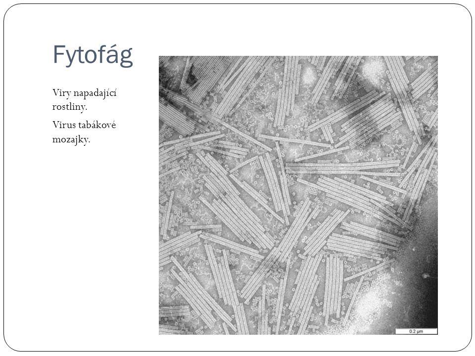 ER drsné=ER s ribozomy Snímek drsného ER po ř ízený elektronovým mikroskopem