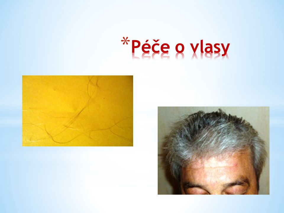 Lidský vlas vyrůstá z kůže převážně na hlavě a skládá se ze dvou částí – vlasového stvolu - a kořenu vlasu, cibulky.