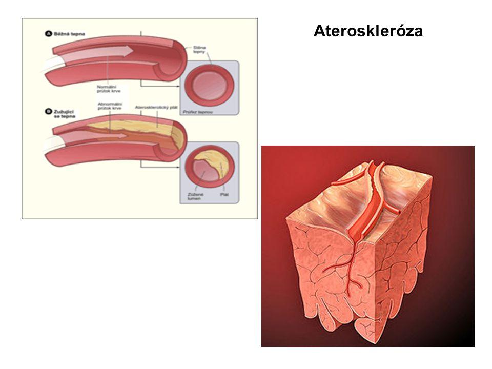 Příčiny  nemoc je většinou způsobena aterosklerózou věnčitých tepen  při tomto chronickém onemocnění dochází k nahromaděním částic tuku, cholesterolu, vápníku a dalších látek na vnitřní straně stěny tepny, které způsobí její zužování  ukázalo se, že takové hromadění tukových částic a vápníku a působení rizikových faktorů, urychluje rozvoj nemoci  platí: Čím víc se uplatňuje rizikových faktorů, tím větší je možnost vzniku a rozvoje onemocnění ICHS
