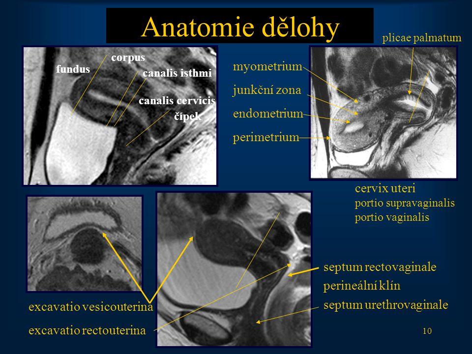 10 Anatomie dělohy septum rectovaginale perineální klín septum urethrovaginale myometrium junkční zona endometrium perimetrium fundus corpus canalis isthmi canalis cervicis čípek excavatio vesicouterina excavatio rectouterina cervix uteri portio supravaginalis portio vaginalis plicae palmatum