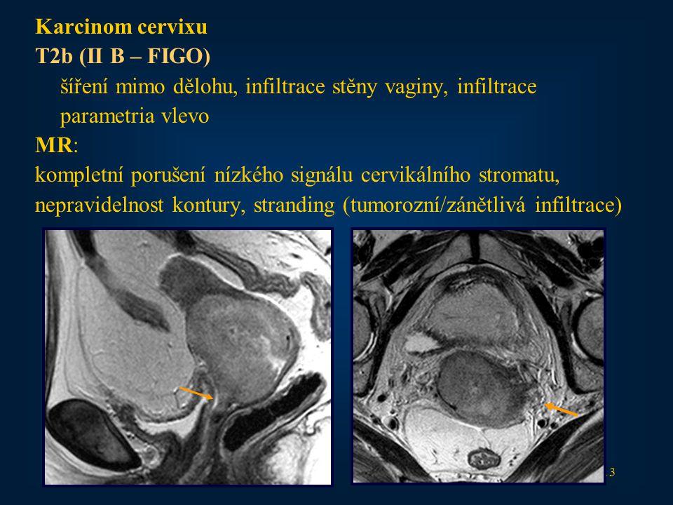 13 Karcinom cervixu T2b (II B – FIGO) šíření mimo dělohu, infiltrace stěny vaginy, infiltrace parametria vlevo MR: kompletní porušení nízkého signálu cervikálního stromatu, nepravidelnost kontury, stranding (tumorozní/zánětlivá infiltrace)