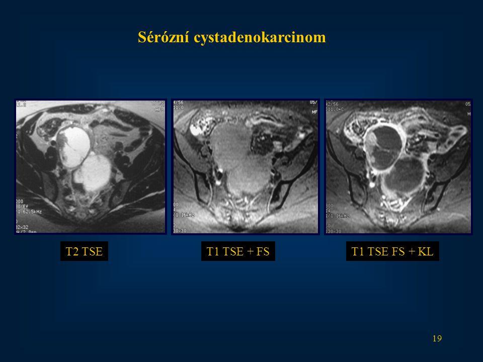 19 Sérózní cystadenokarcinom T2 TSET1 TSE + FST1 TSE FS + KL