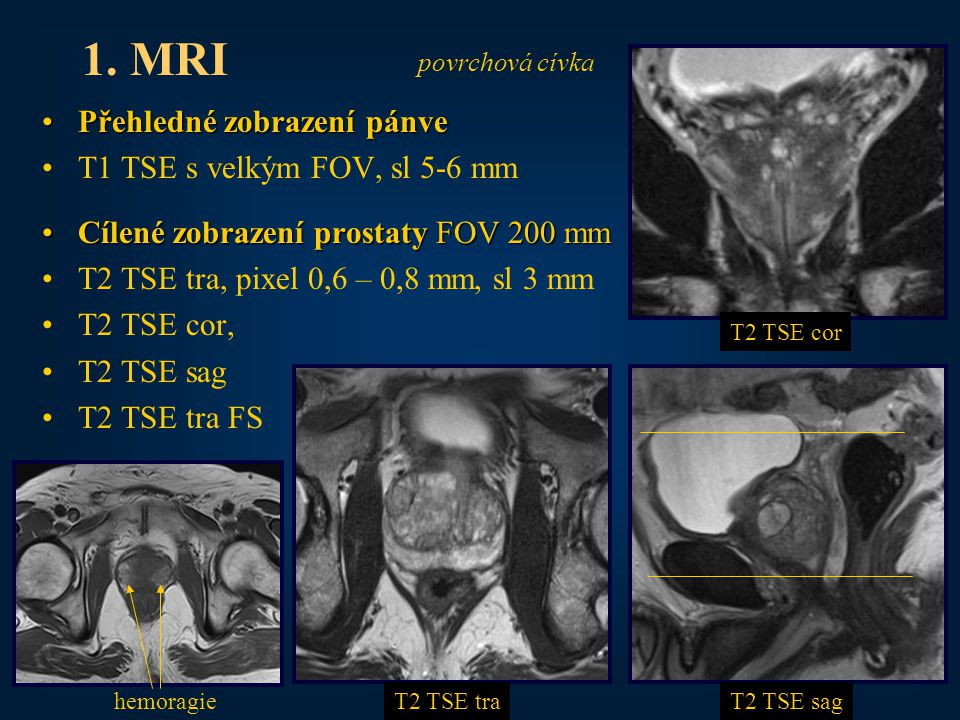 21 Přehledné zobrazení pánvePřehledné zobrazení pánve T1 TSE s velkým FOV, sl 5-6 mm Cílené zobrazení prostaty FOV 200 mmCílené zobrazení prostaty FOV 200 mm T2 TSE tra, pixel 0,6 – 0,8 mm, sl 3 mm T2 TSE cor, T2 TSE sag T2 TSE tra FS 1.